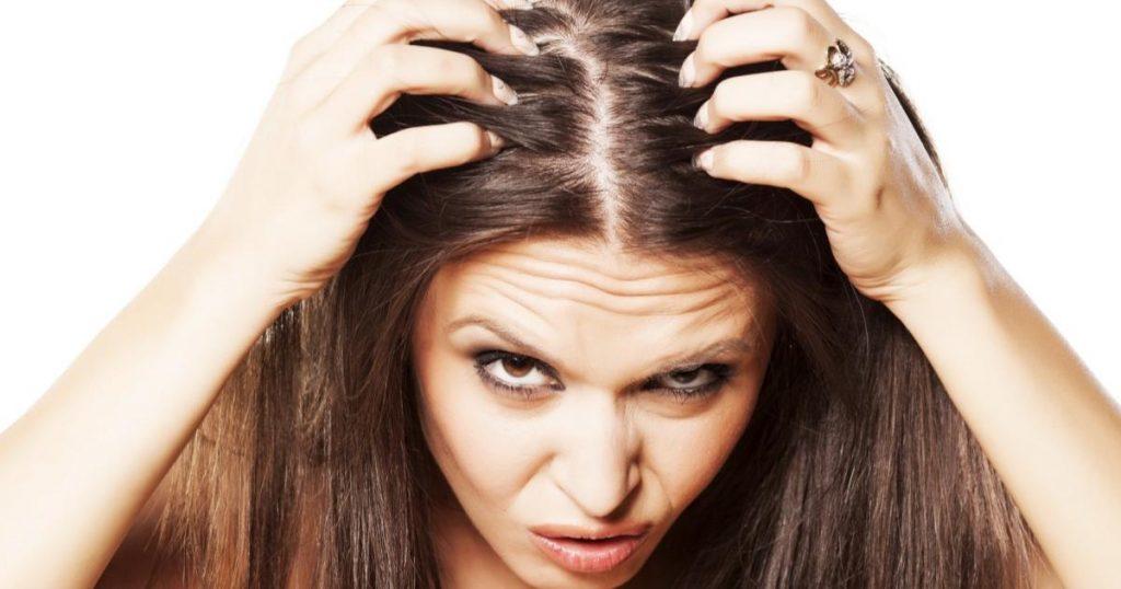 Caida-del-cabello-estres-alopecia-areata-2