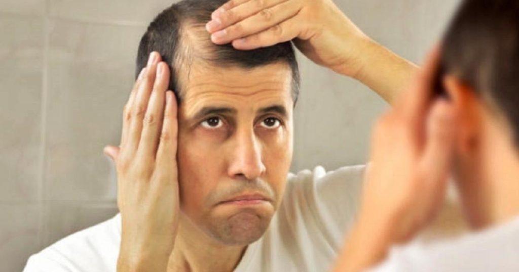 Caida-del-cabello-sintomas-estres